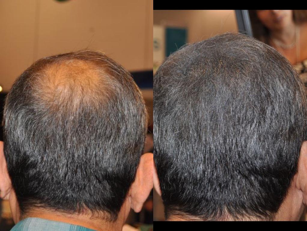 Плазмолифтинг волос для мужчин